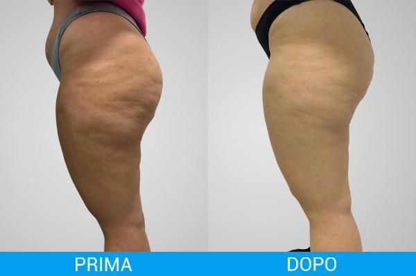 Uno confronto tra il livello di cellulite prima e dopo una seduta di fisioestetica
